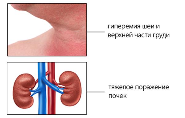 Гиперемия кожи