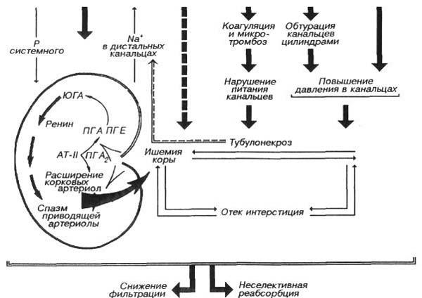 Патогенез олигурии при острой почечной недостаточности