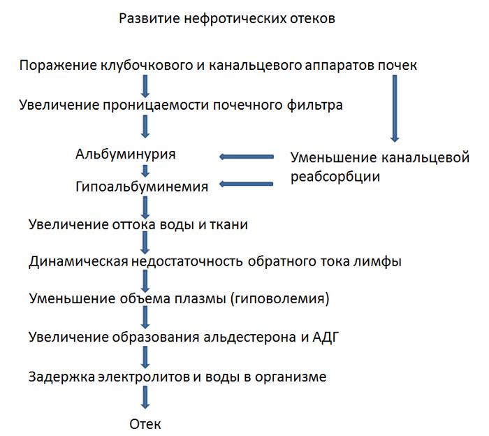 Нефротический отек - схема