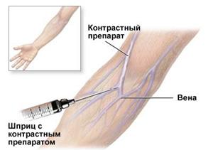 Экскреторная урография