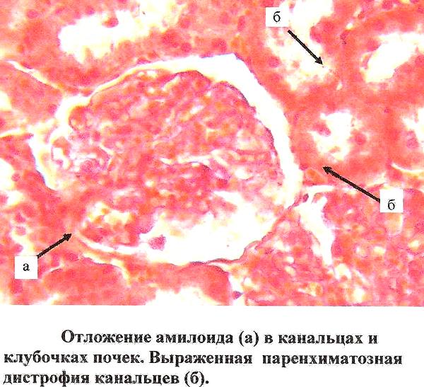 Отложение амилоида в канальцах и клубочках почек