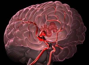Кровизлияние в мозг