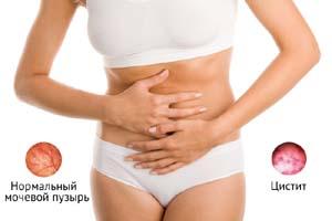 Цистит - осложнение нефроптоза