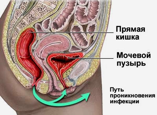 Путь проникновения инфекции в мочевой пузырь