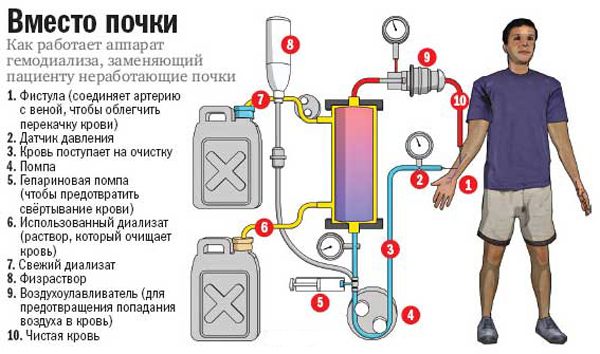 Как работает аппарат гемодиализа