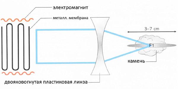 Схема электромагнитного способа выведения камней