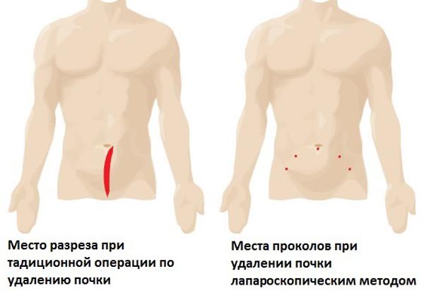 Места разрезов - традиционный метод и лапароскопический