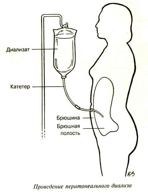 Перитонеальный диализ