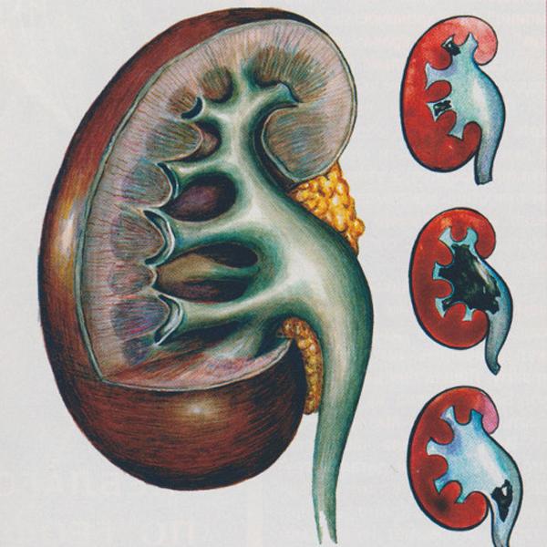 Почечная колика, вызванная мочекаменной болезнью