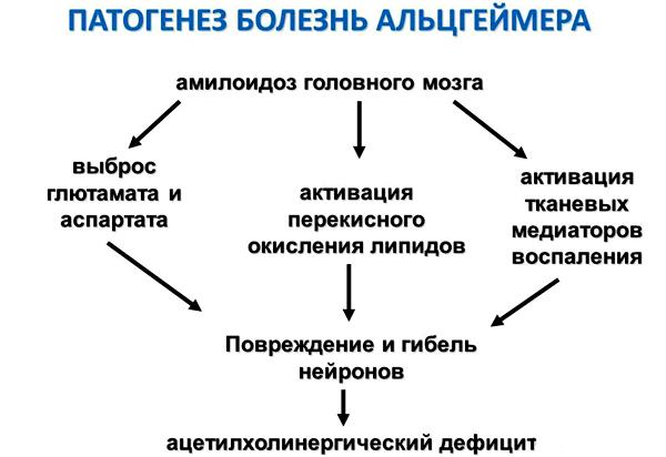 Амилоидоз головного мозга