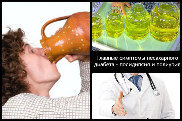 Симптомы несахарного диабета