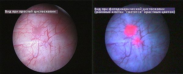 Мочевой пузырь при простой и фотодинамической цистоскопии