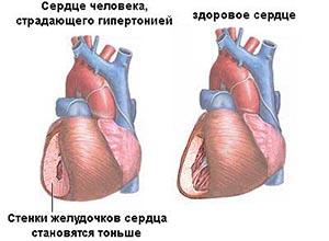 Гипертония и здоровое сердце