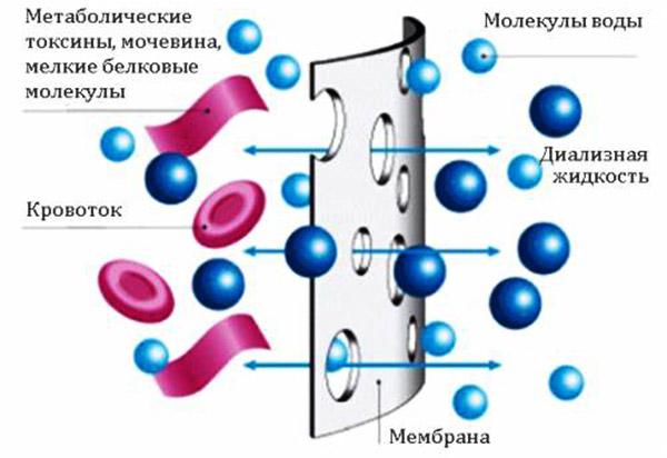 Диффузный гемодиализ