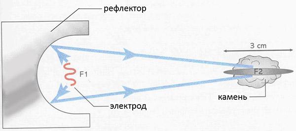 Дистанционная литотрипсия
