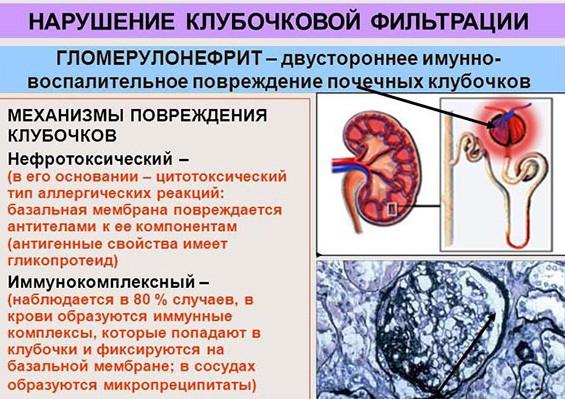 Нефротоксический и иммунокомплексный гломерулонефриты