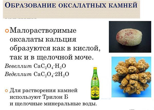 Оксалаты - образование камней