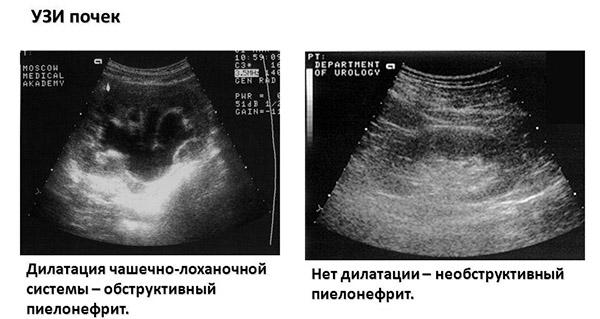 Установка диагноза пиелонефрит на УЗИ почек