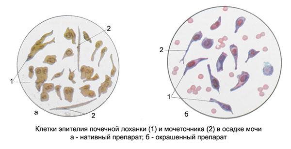 Эпителий почечной лоханки и мочеточника