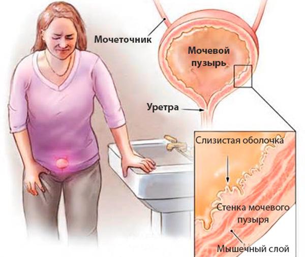 Болевой синдром при цистите