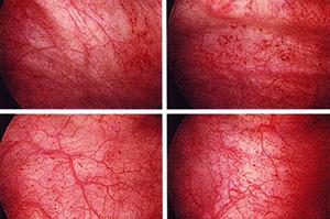 Воспаление интерстиция на цистоскопии