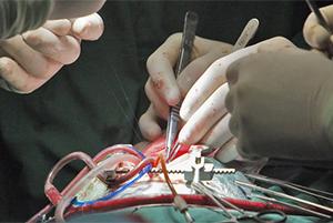 Во время операции по пересадки почки