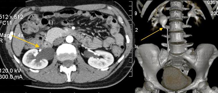 МРТ почек - гидронефроз