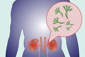 Пиелонефрит - воспалительный процесс