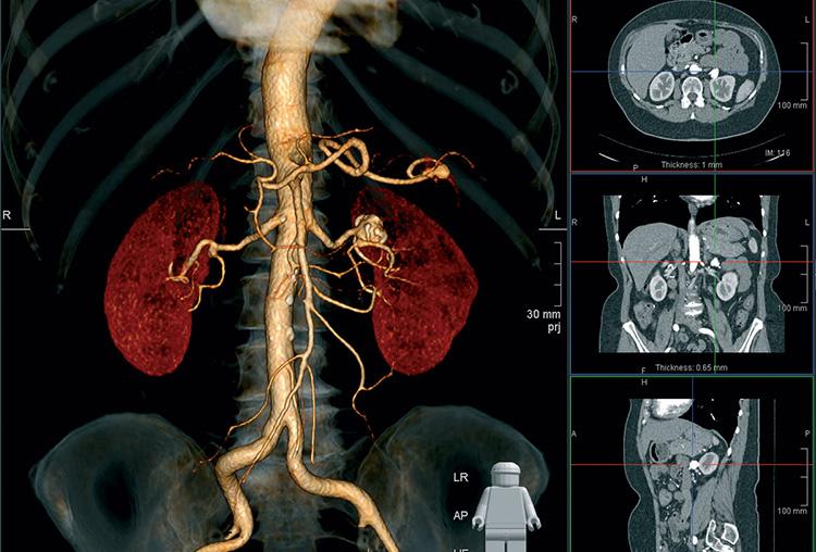 Трехмерное изображение, полученное после процедуры томографии