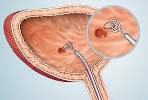 Биопсия при цистоскопии