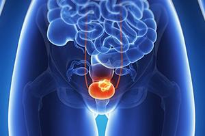 Воспалительный процесс в мочевом пузыре у женщины
