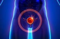 Рак мочевого пузыря - признаки и причины
