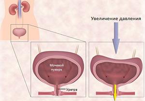 Увеличение давления детрузора при гиперактивности мочевого пузыря