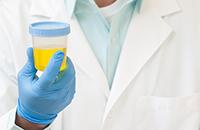 Проверка мочи на лейкоциты
