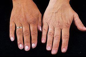 Пигсментация кожи