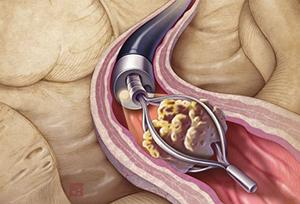 Контактная уретеролитотрипсия