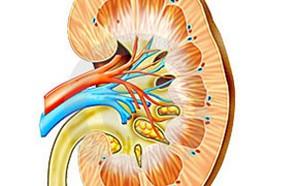 Каликоэктазия или гидрокаликоз почки