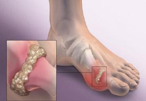 Подагрическое поражение суставов