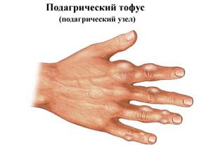 Подагра вследствие повышения мочевой кислоты