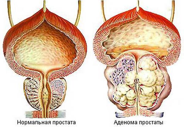 Аденома простаты и нормальная простата