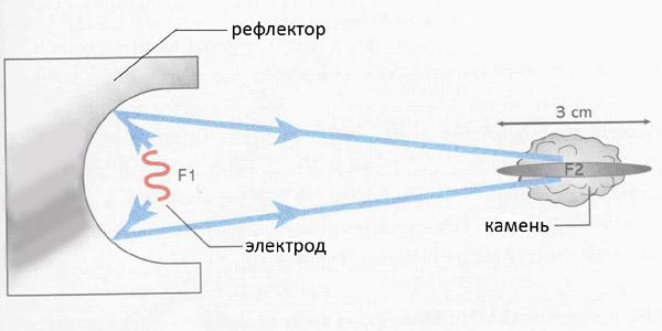 Схема воздействия на камень методом дистанционной литотрипсии