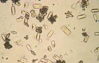 Микролиты в моче