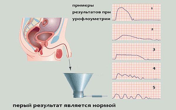 Урофлуометрия