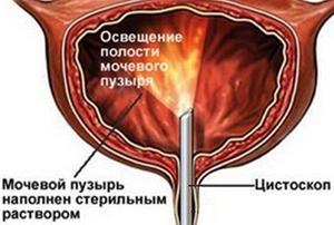 Освещение полости мочевого пузыря цистоскопом