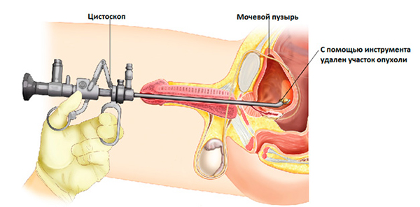 Проведение цистоскопии у мужчин