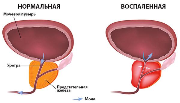 Воспалительное заболевание простаты