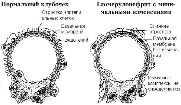 Нормальный клубочек и гломерулонефрит с минимальными изменениями