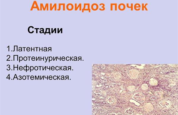 Стади амилоидоза