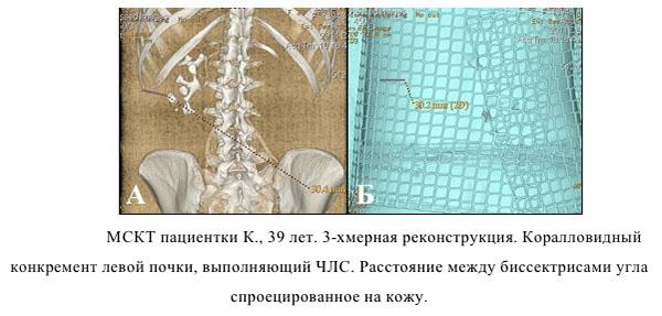 Мультиспиральная компьютерная томография почки
