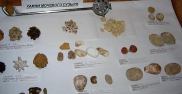 Камни мочевого пузыря